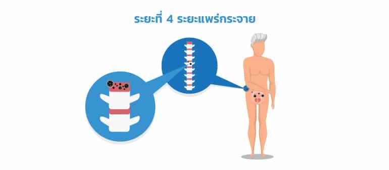 ระยะที่ 4 ระยะแพร่กระจายมะเร็งต่อมลูกหมาก